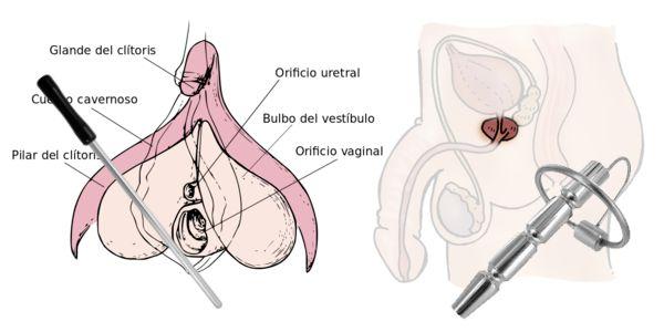estimulacion-uretral-electrosex